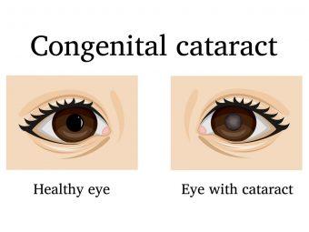 शिशु में मोतियाबिंद के लक्षण, कारण व  इलाज | Cataract In Babies Eye In Hindi