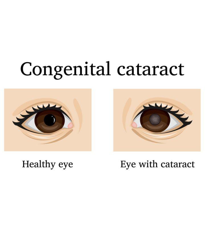 Cataract In Babies Eye In Hindi-1