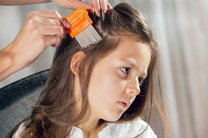 Head Lice In Children Causes, Treatment