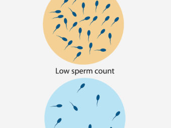 शुक्राणु की कमी (Low Sperm Count) : लक्षण, निदान और इलाज | Sperm Motility In Hindi