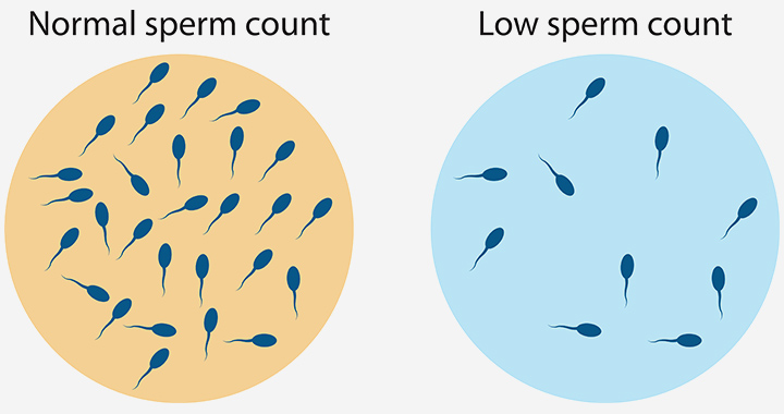 Sperm Motility In Hindi