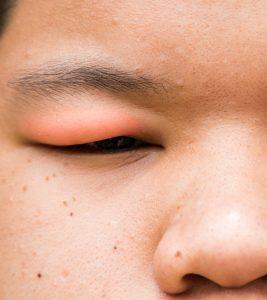 Causes Of Swollen Eyelids In Children