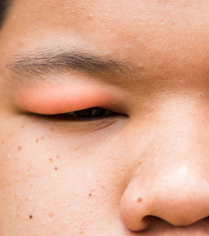 Causes Of Swollen Eyelids In Children And Home Care Tips