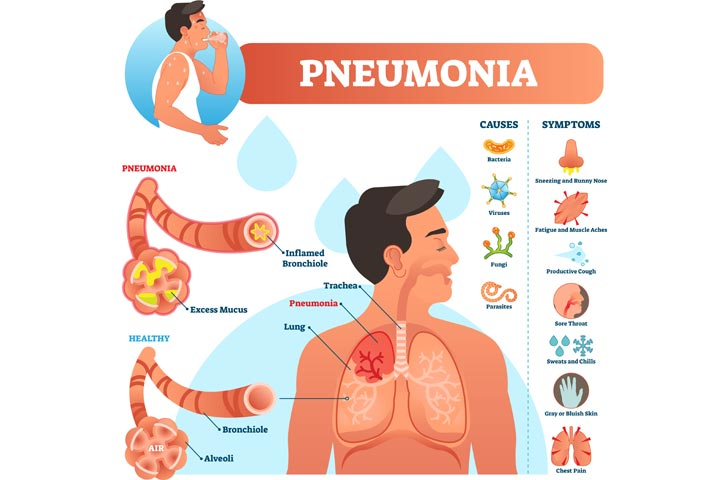 Pneumonia In Teens Symptoms, Causes Treatment Prevention-1