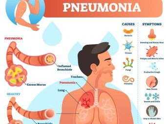 Pneumonia In Teens: Symptoms, Causes, Treatment & Prevention