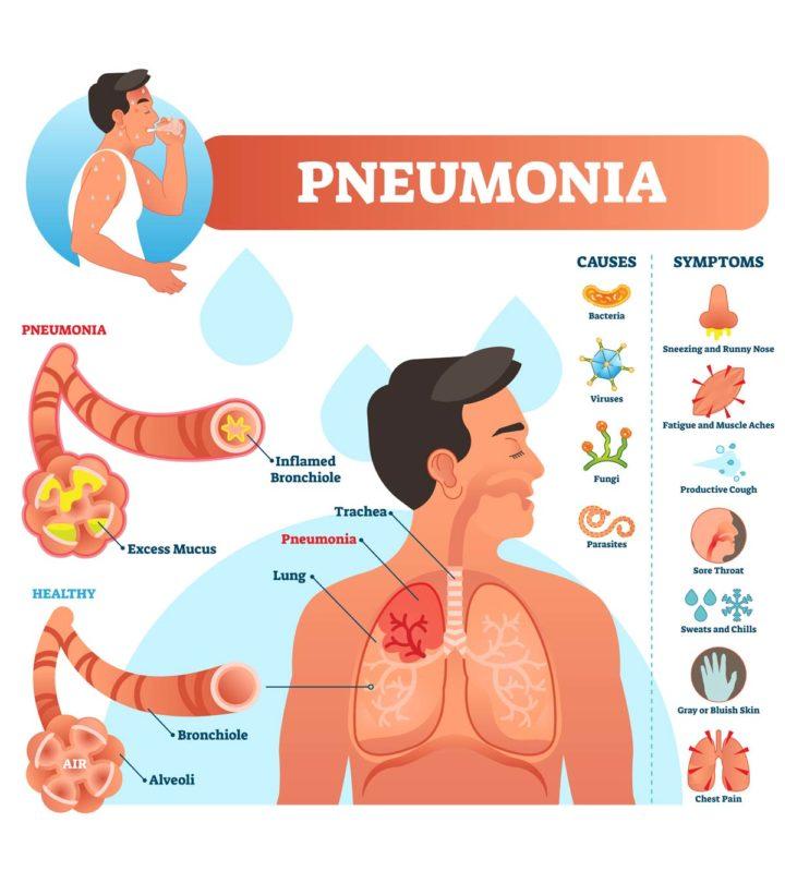 Pneumonia In Teens Symptoms, Causes Treatment Prevention-1
