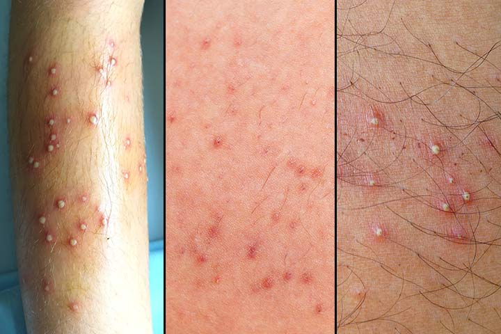 What Does Folliculitis Look Like, And Is It Contagious
