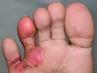 Athlete's Foot In Children: Causes, Home Care And Treatment