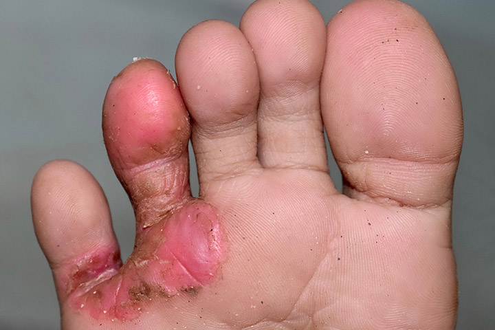 Athlete's Foot In Children Causes, Home Care And Treatment