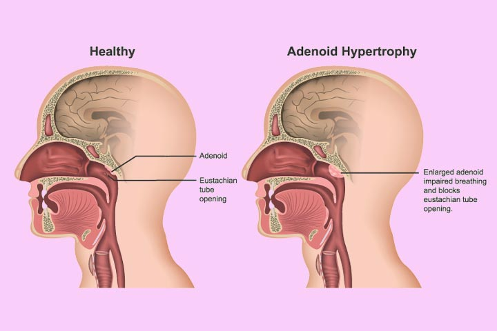 Enlarged Adenoids In Children Symptoms, Removal, And Treatment-1