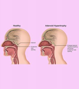 Enlarged Adenoids In Children Symptoms, Removal, And Treatment-2