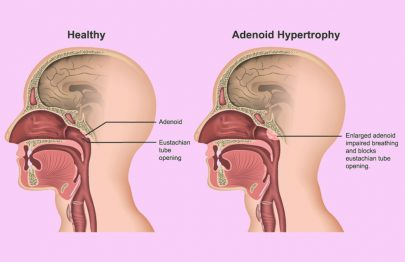 Enlarged Adenoids In Children: Symptoms, Removal, And Treatment