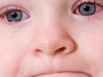 Pink Eye (Conjunctivitis) In Kids: Symptoms, Treatment And Care