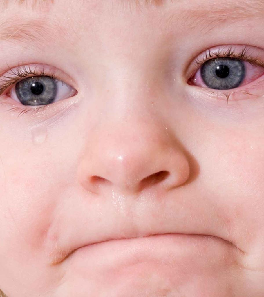 what are the symptoms of pink eye in children
