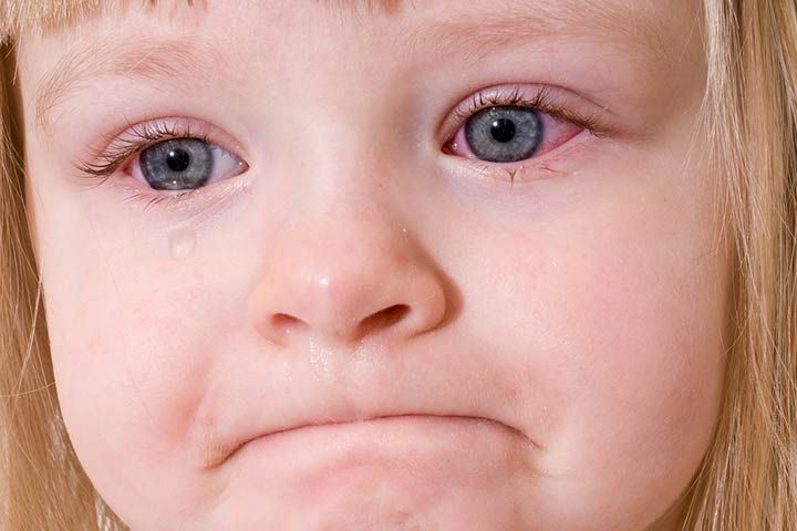 Pink Eye (Conjunctivitis) In Kids