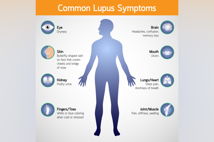 Signs And Symptoms Of Lupus In Children