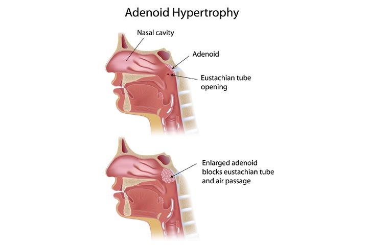 What Are Enlarged Adenoids