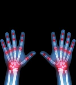 9 Symptoms Of Arthritis In Children, Causes And Treatment