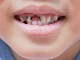 Tooth Decay (Rotten Teeth) In Children: Causes And Treatment
