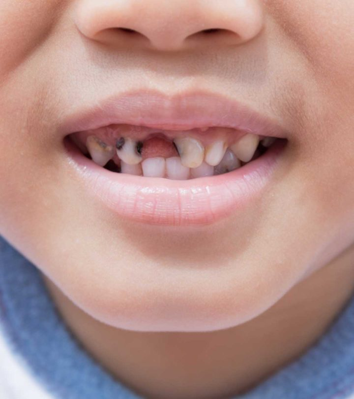 Tooth Decay (Rotten Teeth) In Children