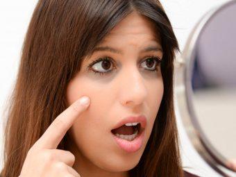 प्रेगनेंसी में आंखों के नीचे काले घेरे हटाने के 6 नुस्खे व 3 आसान फेस पैक | Pregnancy Me Dark Circles Hatane Ke Nuskhe