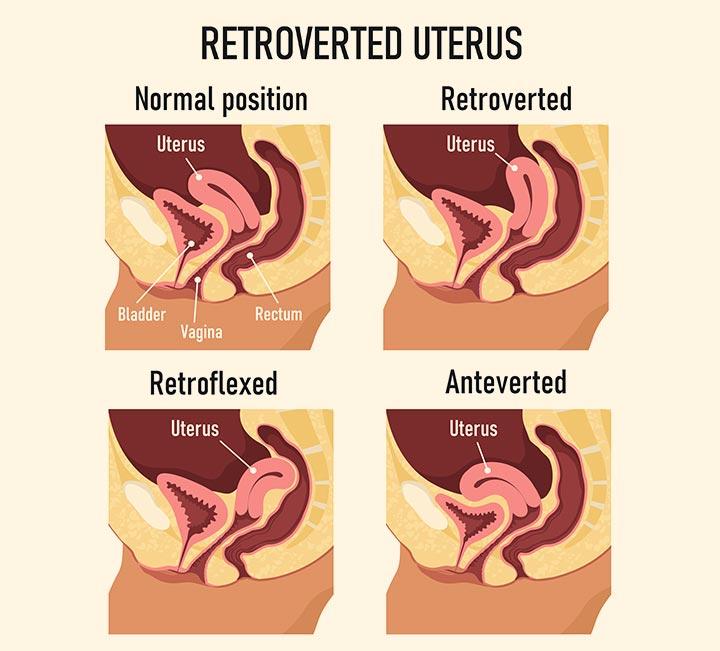 Retroverted Uterus