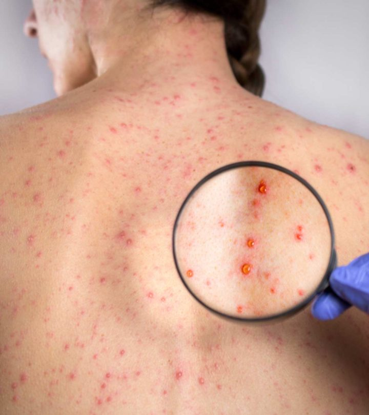 Rubella (German Measles) In Children: Symptoms, Causes, And Treatment