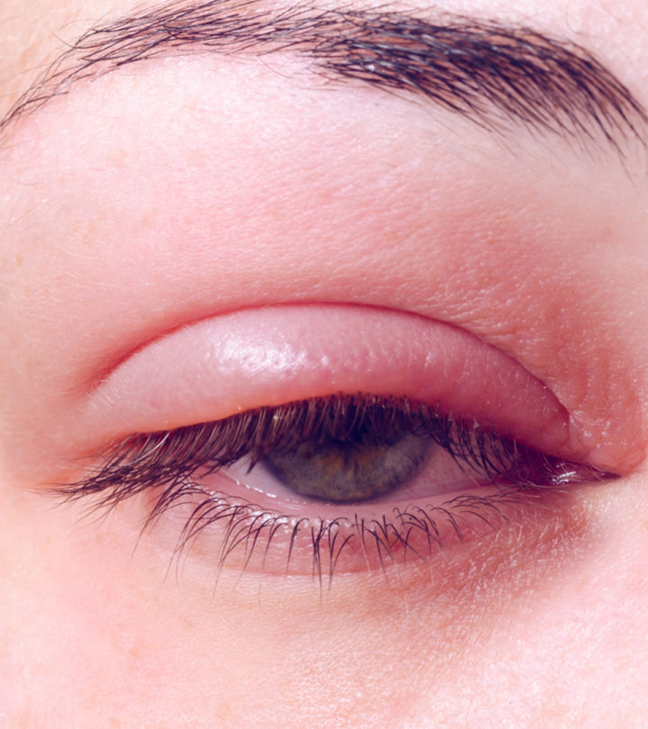 What Causes Chalazion In Children And How To Treat