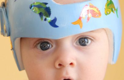 Why Do Babies Have To Wear A Helmet And For How Long?