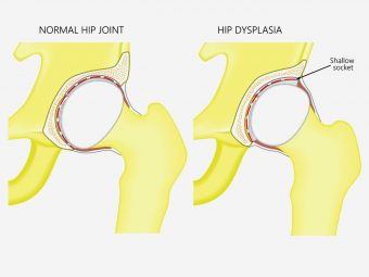 Hip Dysplasia In Babies: Causes, Signs And Treatment
