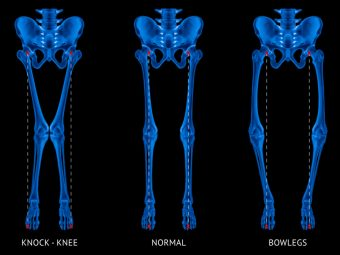 Rickets In Children Symptoms, Causes, Risks, And Treatment