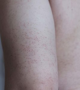 7 Home Care Treatments For Keratosis Pilaris In Children