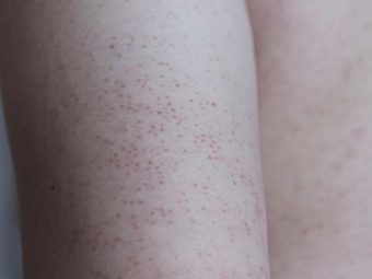 What Causes Keratosis Pilaris In Children And How To Treat It?