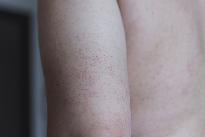 What Causes Keratosis Pilaris In Children And How To Treat It