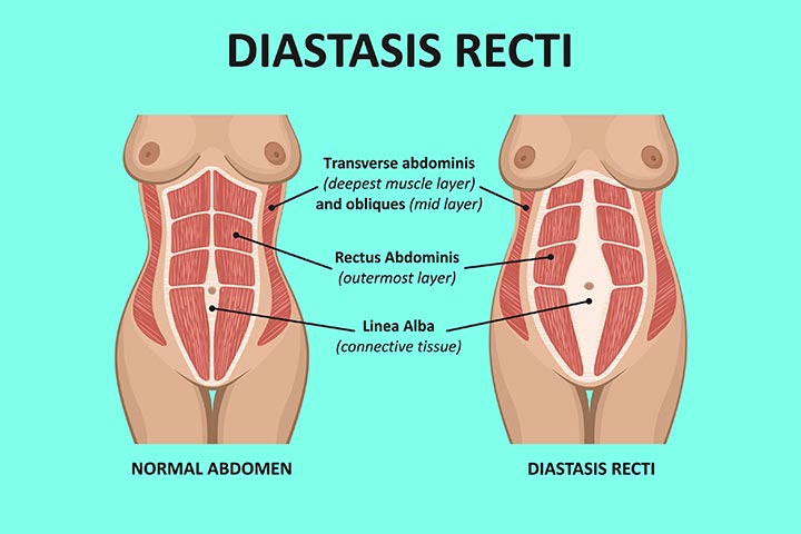 What is the problem of diastasis recti