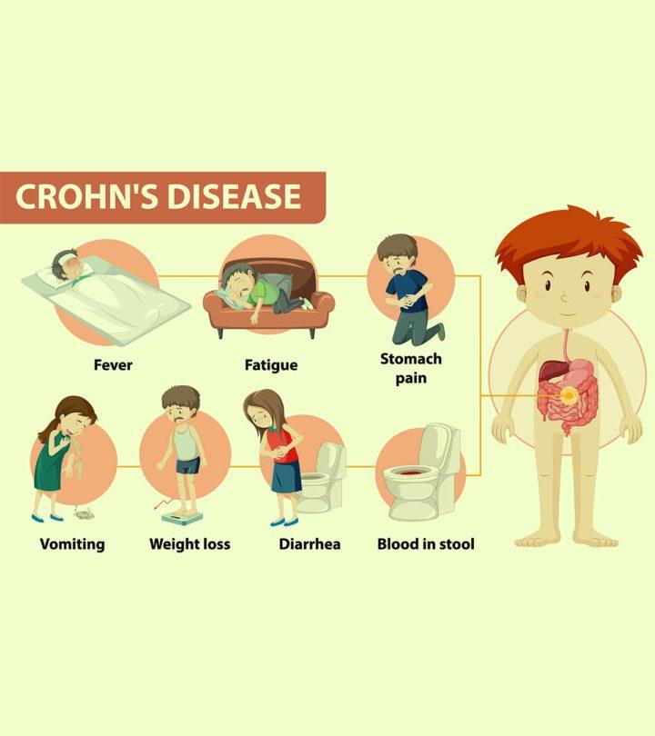 Crohn's Disease In Children