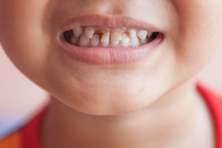 Gingivitis In Children Types, Causes, Symptoms, And Treatment