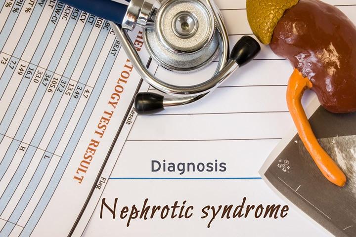 Nephrotic Syndrome In Children