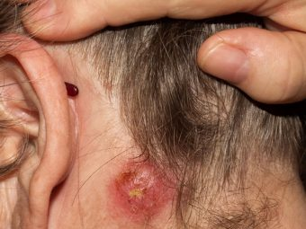 Staph Infections In Kids: Causes, Symptoms, Treatment, And Remedies