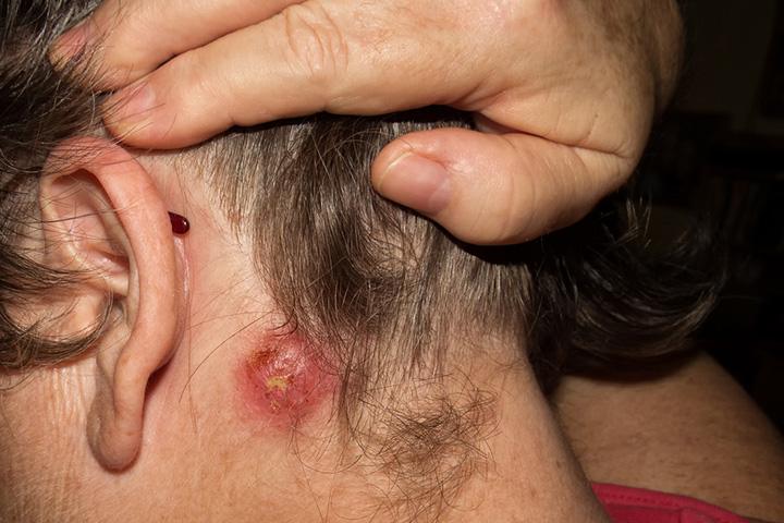 Staph Infections In Kids