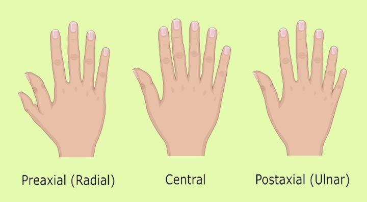 Types Of Polydactyly-1