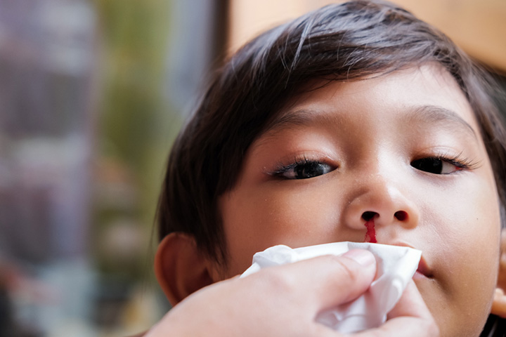 What Causes Nosebleeds In Children And How To Stop Them