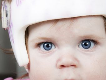 Baby Head Shape: What Affects It And When To Worry