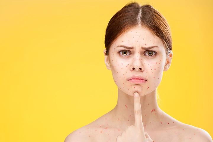 Chickenpox in Pregnancy in Hindi