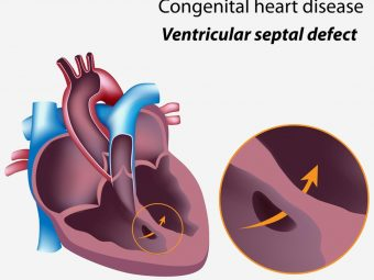 Congenital Heart Disease In Children: Types, Signs, Causes, And Treatment