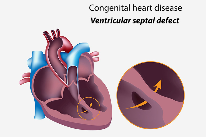 Congenital Heart Disease In Children Types, Signs, Causes, And Treatment