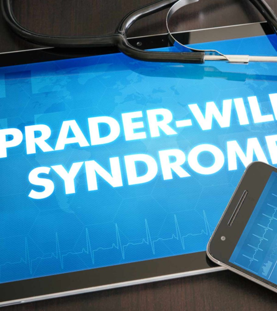 Prader Willi Syndrome Causes Symptoms Diagnosis And Treatment 910x1024