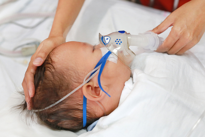 Respiratory Syncytial Virus (RSV) In Babies: Symptoms, Treatment, And Prevention