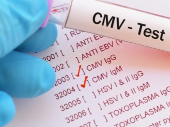 Babies Born With CMV: Symptoms, Causes And Treatment