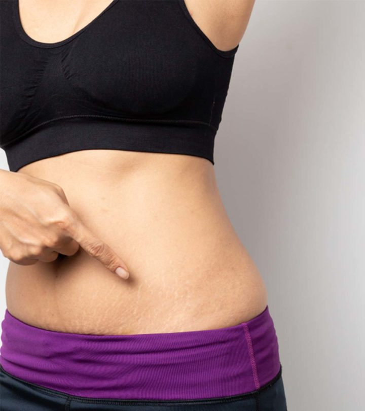 Postpartum Stretch Marks - Some Simple Tips to Disappear Quickly-1